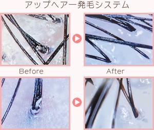アップヘアー育毛システム